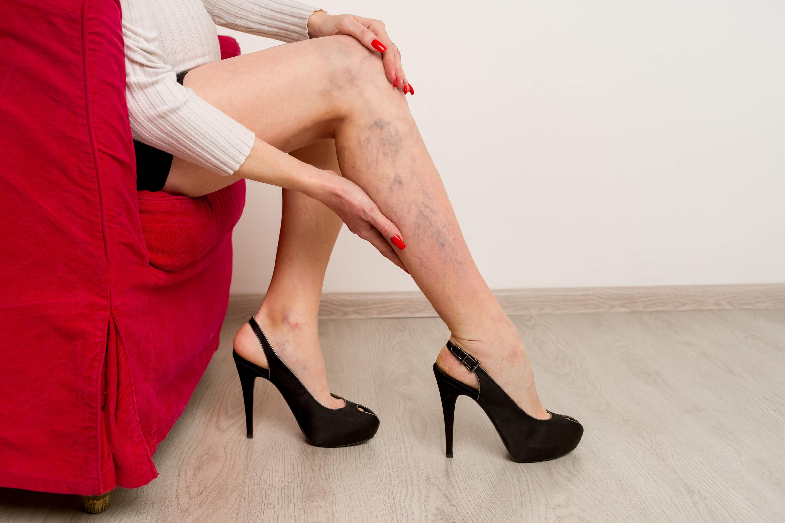 Female legs with painful varicose veins